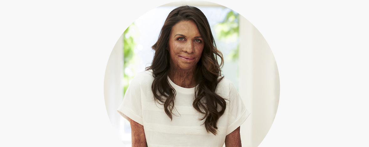#44: Turia Pitt – Reframing Your Mindset, Embracing Gratitude & Overcoming Challenges – Your Dream Life Podcast